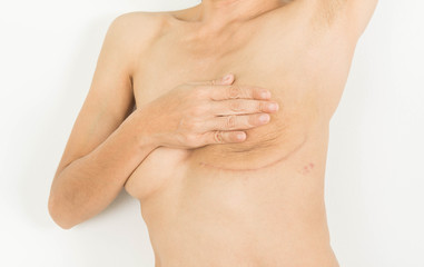 Fotorolgordijn Akt Breast Cancer Surgery in woman