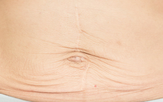 wrinkles Skin from pregnancy