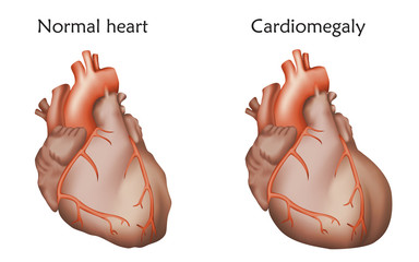 Cardiomegaly. Enlarged and normal heart muscles. Anatomy illustration. Colorful image, white background.