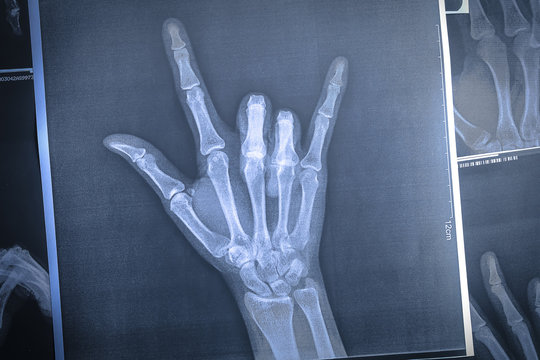 x-ray image of a hand making I love you symbols.