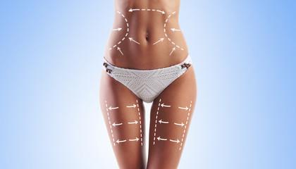 Women slim body in swimwear having arrows along her stomach and legs.