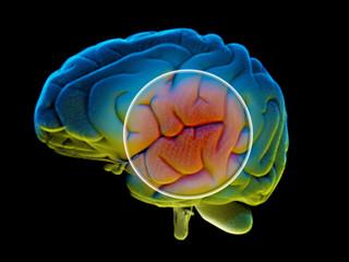 Cervello, malattie degenerative, Parkinson, corpo umano, organo. Scansione del cervello formato da particelle