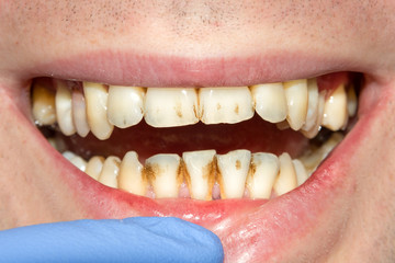 caries spoiled tooth closeup photographed