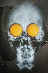 Skull,CHOLESTEROL,   head X-ray with two fresh eggs,breakfast,diet ,Halloween