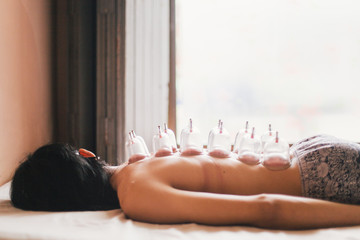 Asian woman receiving cupping therapy