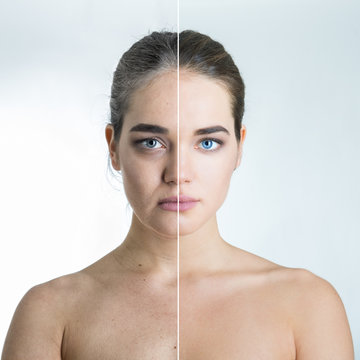 Anti-aging concept, portrait of beautiful woman with problem and clean skin, aging and youth concept, beauty treatment, plastic surgery, beauty shots. Female face before and after beauty treatment.