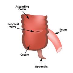 Ileocecal angle. Ileocecal valve. Bauginiev s damper. The ileum, the Cecum, the Apendix. Colon. Infographics. Vector illustration on isolated background.