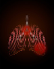 World Tuberculosis Day poster . Medical solidarity day concept. Sick lungs.