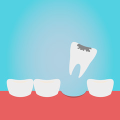 Extracted tooth in tongs. Dentist pulls out sick tooth. Stamatologic concept. Remove root. Vector illustration flat design. Isolated on background.