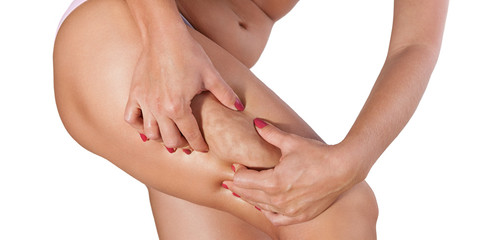 Woman cellulite squeezed with her hands