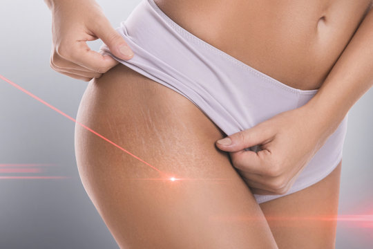 Stretch marks during laser removal session treatment