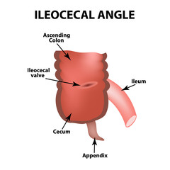Ileocecal angle. Ileocecal valve. Bauginiev s damper. The ileum, the Cecum, the Apendix. Colon. Infographics. Vector illustration on isolated background.