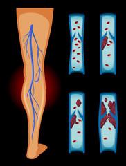 Blood clot in human leg