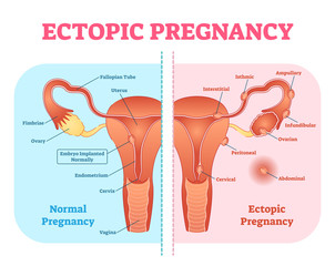 Ectopic Pregnancy or Tubal pregnancy medical diagram with female reproductive system and various embryo attachment locations.