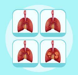Diagram showing different stages of lung cancer