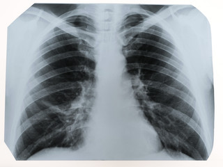 X-ray of a human chest or lungs radiography shot, medical technology and roentgen clinic diagnostic concept