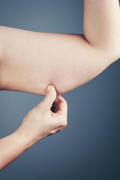 Woman with the excessive fat checking her upper arm, grey background.
