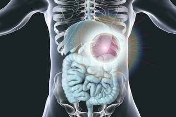 Stomach cancer treatment and prevention concept, 3D illustration
