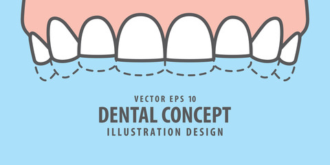 Banner Upper attrition (Bruxism) teeth illustration vector on blue background. Dental concept.