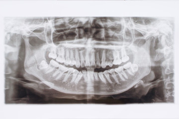 Dental X-Ray ,x-ray film patient .Oral health