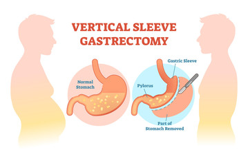 Vertical Sleeve Gastrectomy medical vector illustration diagram with stomach surgical cut.