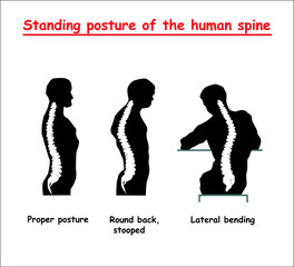 Standing posture of the black human spine. Defects of the human spine. Correct alignment of human body in standing posture. vector illustration