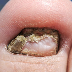 big toe with unpleasant nail affected by the fungus