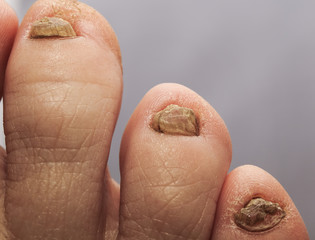 ugly toes with horrible unpleasant nails affected by fungus
