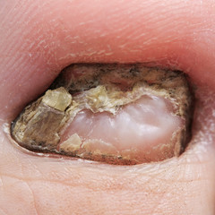 the nail struck by a terrible and nasty disease fungus closeup