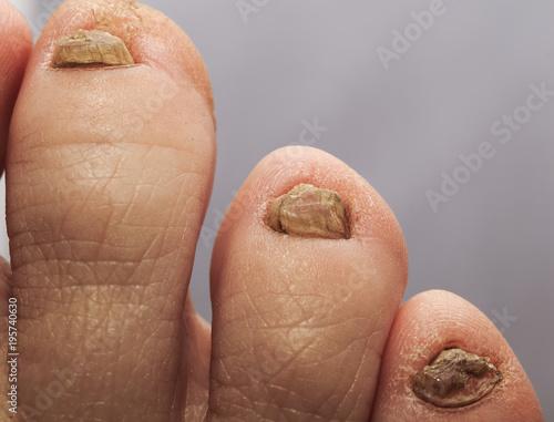 Ugly thumb pics