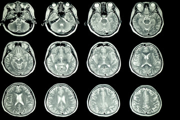 MRI scan of patient brain