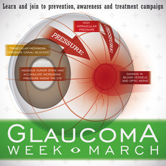 Glaucoma Week Design with a Description of this Ocular Disease, Vector Illustration
