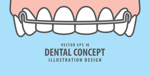 Banner Upper Hawley retainer illustration vector on blue background. Dental concept.