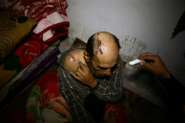 A wounded man is seen in a shelter in the besieged town of Douma