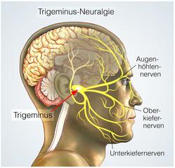 Trigeminusäste.Trigeminus-Neuralgie