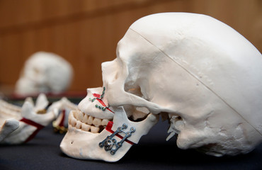 A skull with titanium plates of Medartis, a Swiss producer of metal implants for the surgical management of fractures, is seen during a news conference to present the planned IPO, in Zurich