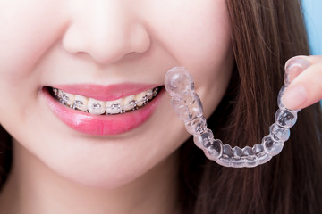 woman take invisible braces