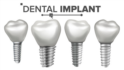 Dental Implant Set Vector. Implant Structure. Crown, Abutment, Screw. Care, Stomatology. Realistic Isolated Illustration