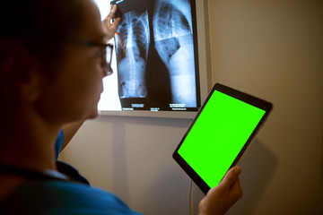 Rear view of professional middle aged nurse checking X-ray and holding a tablet with blank editable green screen in a doctors office.