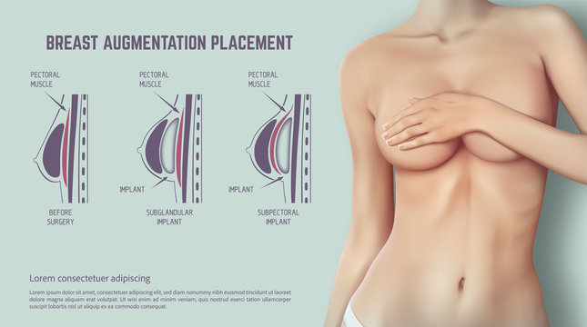 Diagram about method of insertion for breast implant. Plastic surgery of breast implants illustration.