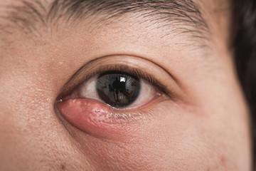Close up abscess stye, hordeolum