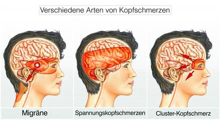 Verschiedene Kopfschmerz-Arten
