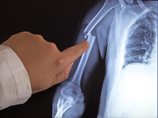 X-ray image of broken arms