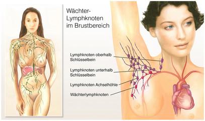 Wächter-Lymphknoten.Brustbereich