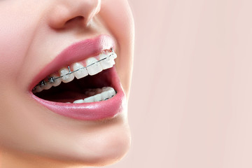 Close up open mouth with Ceramic and Metal Braces on beautiful Teeth. Broad Smile with Self-ligating Brackets. Orthodontic Treatment. Woman Smiling Showing Dental Braces..