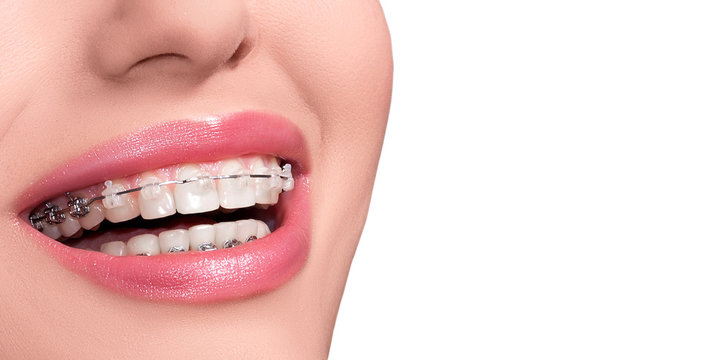Braces on Teeth. Dental Braces Smile. Orthodontic Treatment. Closeup Smiling Face with Braces. Isolated on White Background..