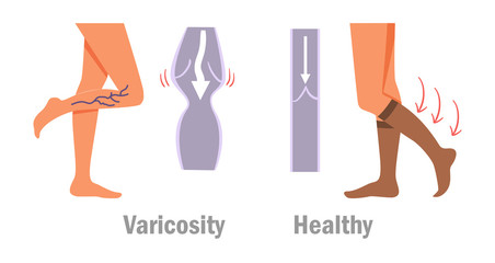 Varicosity. Legs. Vector.