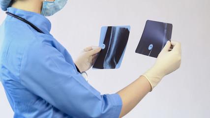 Doctor analyzing injured bones x-ray, making diagnosis, hospital surgery, job