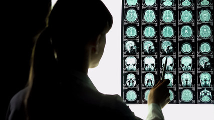 Neurosurgeon analyzing brain x-ray, blood vessels problems, incurable illness