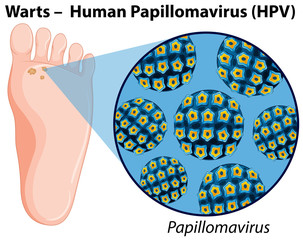 Diagram showing human papillomavirus